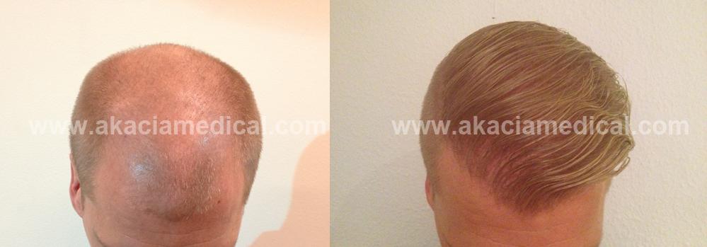 Före och efterbild hårtransplantation 3400 hårsäckar FUE