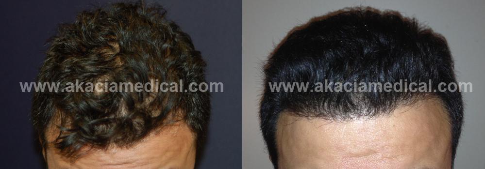 före och efterbild hårtransplantation