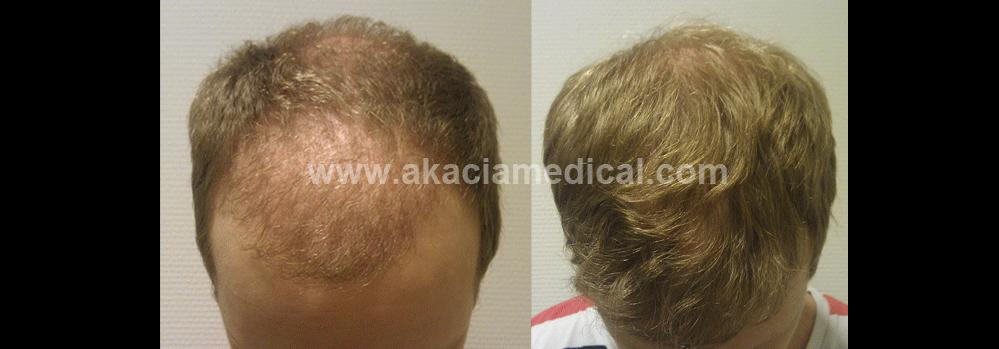 före och efterbild hårtransplantation 3500 hårsäckar