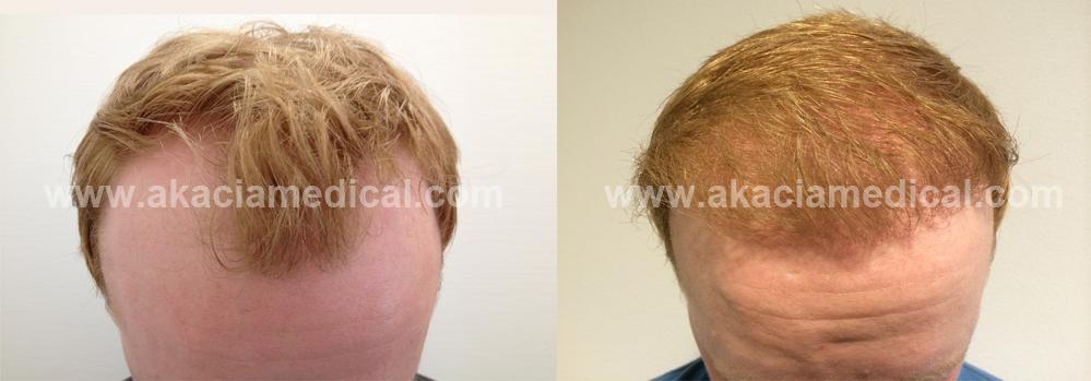 före och efterbild 3000 hårsäckar