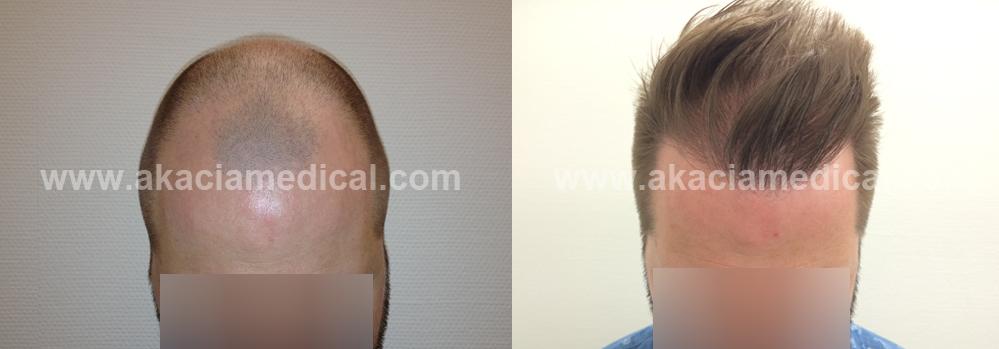 före och efterbild hårtransplantation fue