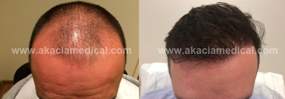Före och efterbild hårtransplantation 3700 hårsäckar FUE