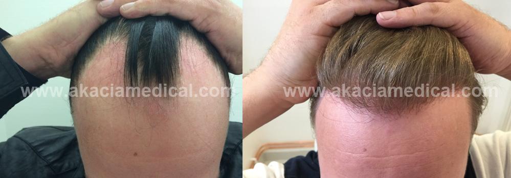 Före och efterbild hårtransplantation 3600 hårsäckar FUE