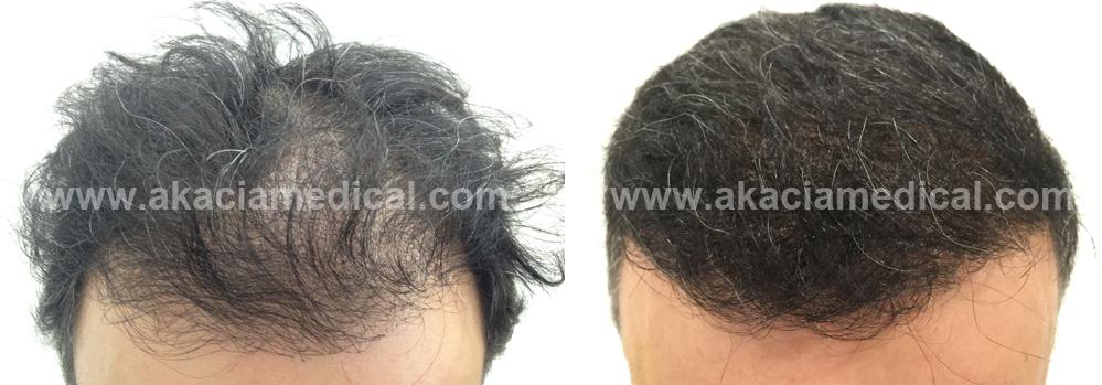 Före och efterbild hårtransplantation2900 hårsäckar graft