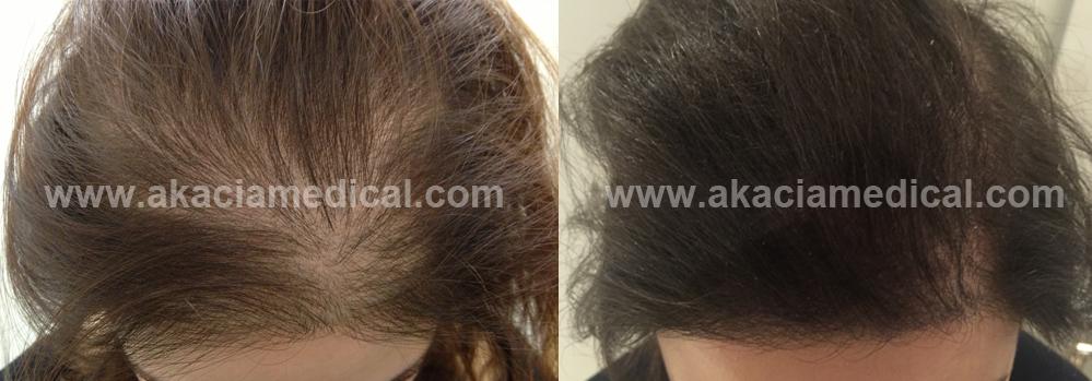 Före och efterbild hårtransplantation kvinna 3000 hårsäckar graft