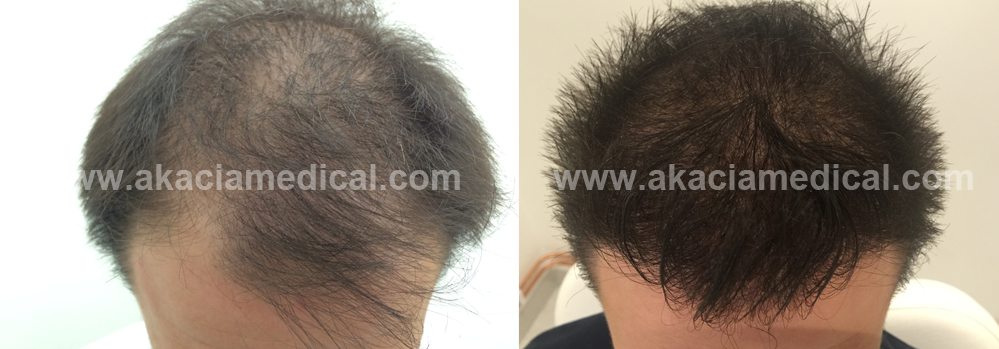 Före och efterbild hårtransplantation 3500 hårsäckar graft