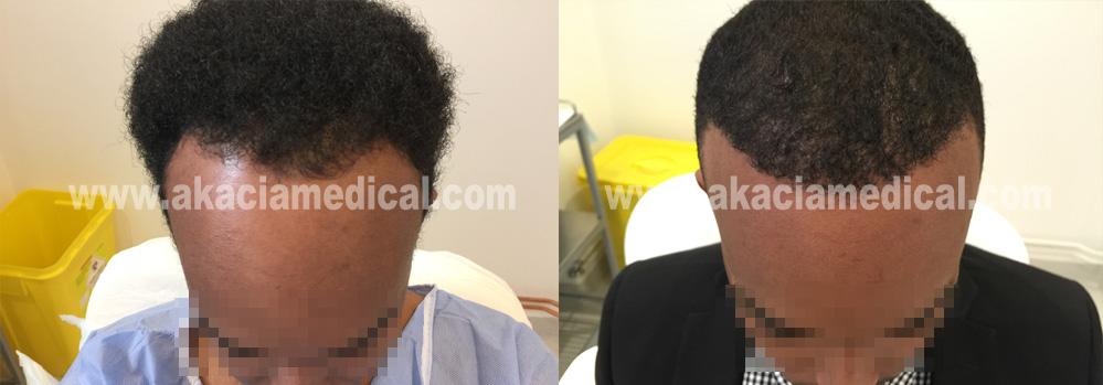 Före efterbilder hårtransplantation 3600 hårsäckar graft