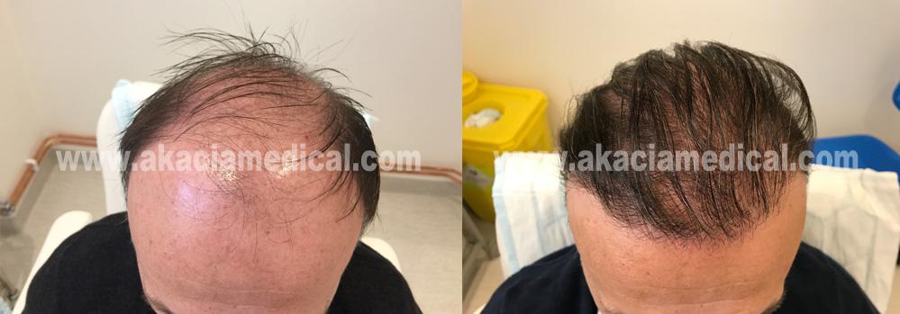 Före och efterbild hårtransplantation 3600 hårsäckar graft
