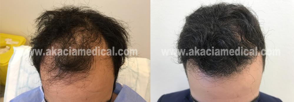 Före efterbild 3600 hårsäckar/graft