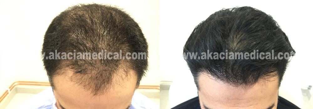 Före efterbilder 3600 hårsäckar graft