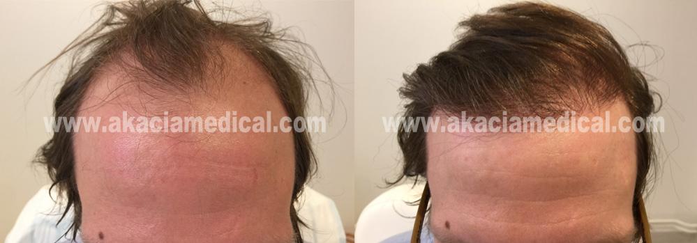 Före och efterbild 3600 hårsäckar
