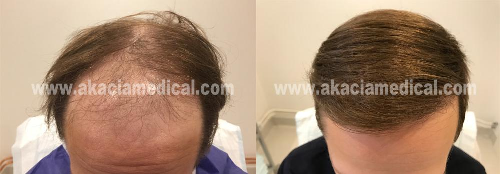 Före och efterbilder hårtransplantation 3600 hårsäckar