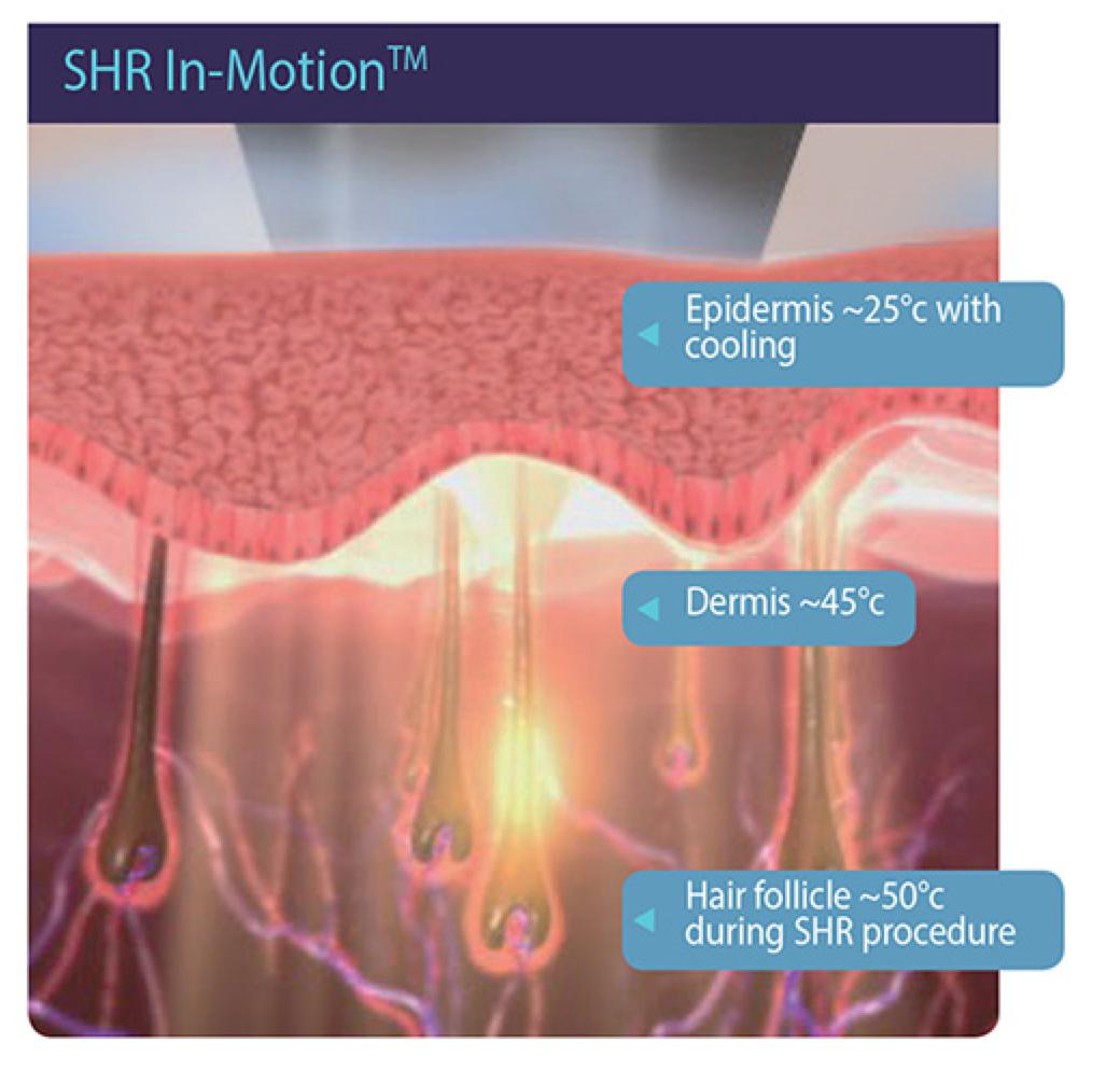 SHR In-Motion