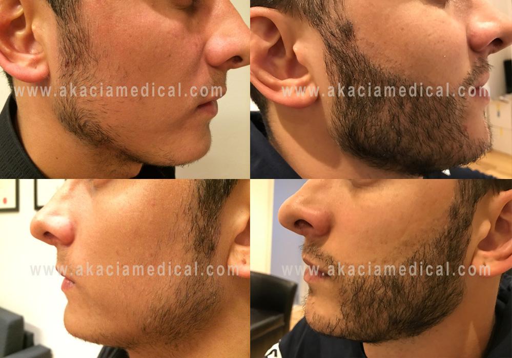 Före och efterbild 3500 hårsäckar skäggtransplantation