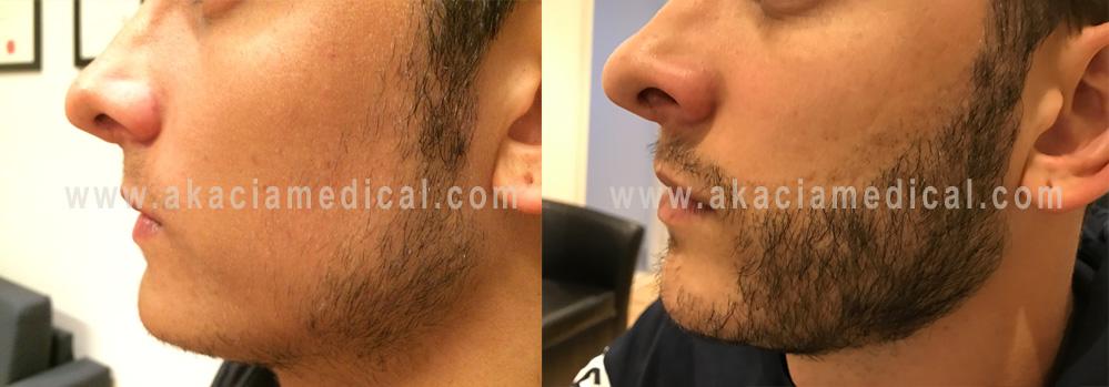 Före och efterbild skäggtransplantation