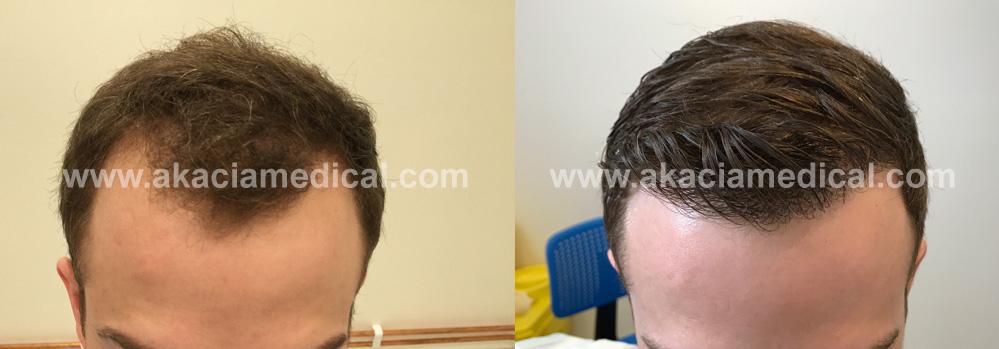 Före och efterbilder hårtransplantation 2500 hårsäckar