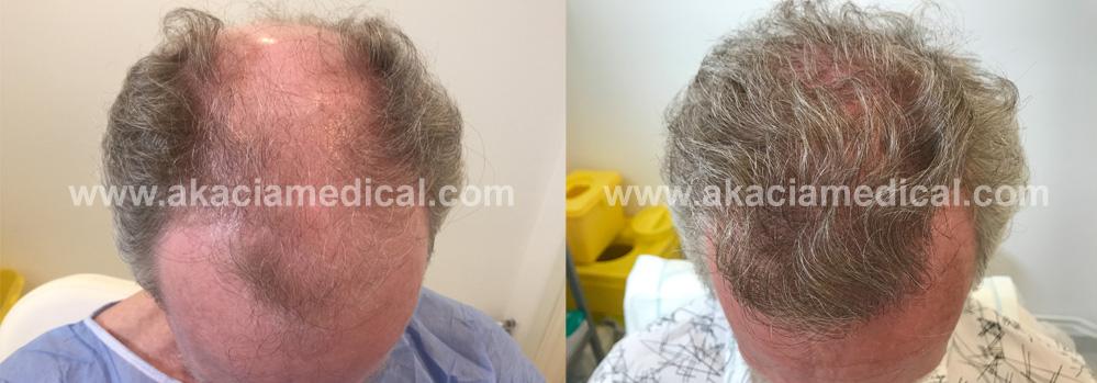 Före och efterbilder hårtransplantation 3500 hårsäckar