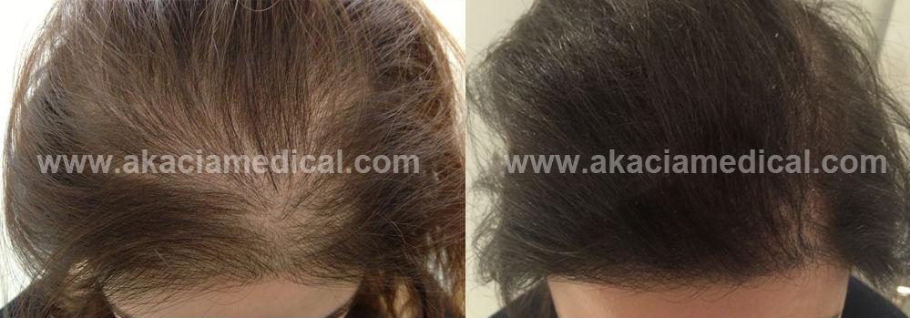 hårtransplantation kvinna före och efter bilder