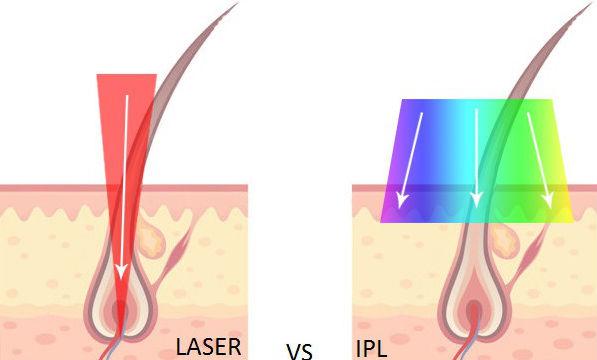 vad används laser till