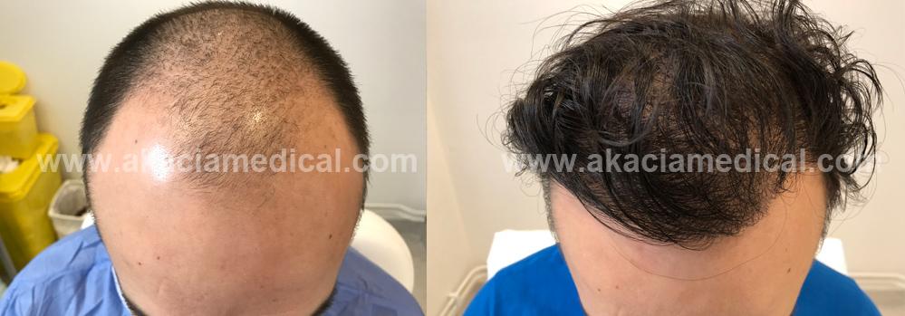Före och efter bilder hårtransplantation
