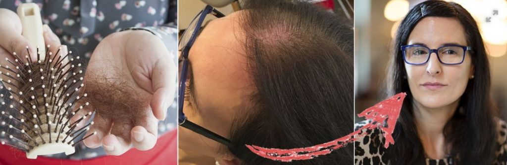 hjälp mot håravfall kvinna