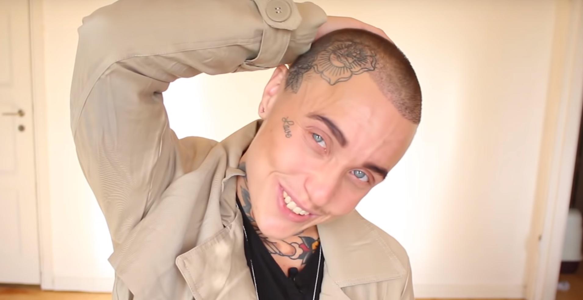 Love Pascal Prelogs hårtransplantations video