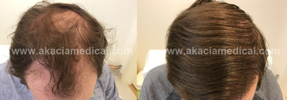 Akacia Medical hårtransplantation transformation