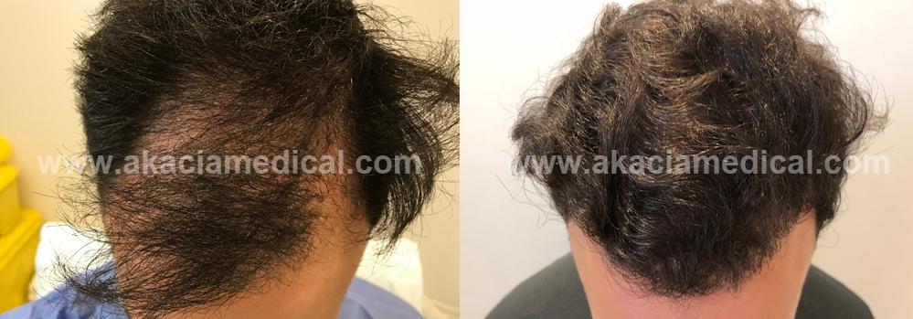 Hårklinik hårtransplantation före och efter